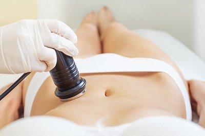 Ultrasound Fat Cavitation