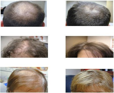 Low Level Laser Therapy (LLLT) For Hair Loss